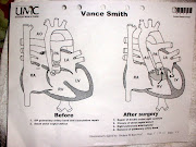 Baby Vance's detailed heart diagram & more photos