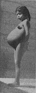 Lina Medina picture,Lina Medina images, Lina Medina photo, World's Youngest Mother picture, World's Youngest Mother images, World's Youngest Mother photo,World's Youngest Mother pics