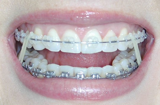 Before And After Braces Crossbite. teeth races before and after