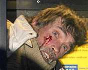 Brian Haw bleeding after arrest (14/1/2008)