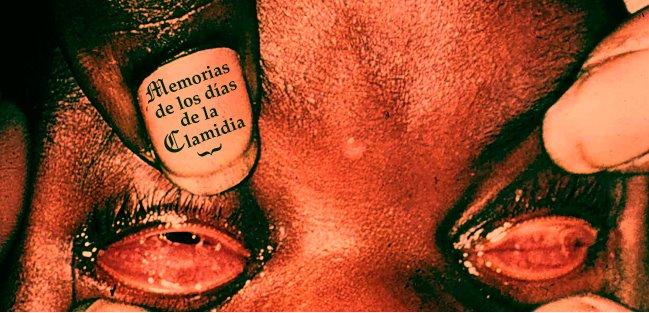 MEMORIAS DE LOS DIAS DE LA CLAMIDIA