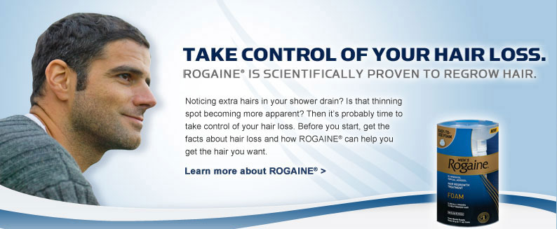 Can i buy rogaine over the counter
