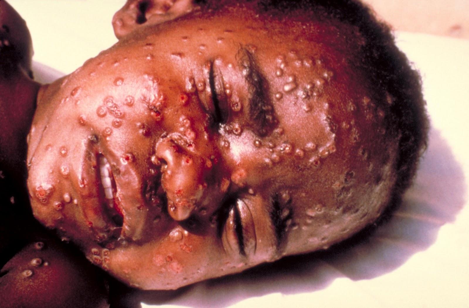 http://2.bp.blogspot.com/_kUokZVFwYj8/TOImIOR-l1I/AAAAAAAAAJU/Uq3S-xScjiU/s1600/Smallpox.jpg