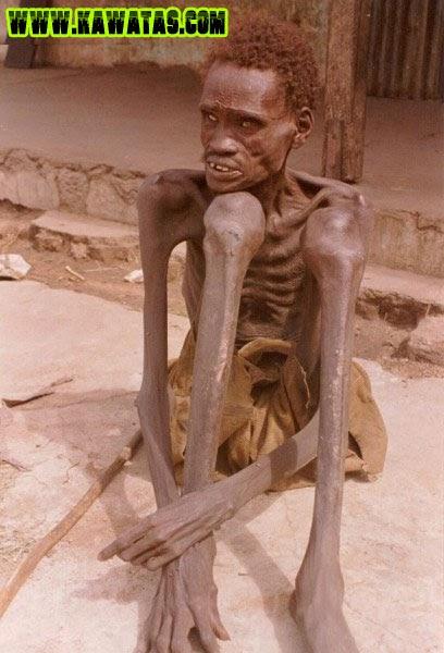 Impossível de aturar: anorexia