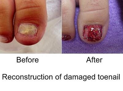 I beauty bar nyc acrylic nail repair treatment for Acrylic nail salon nyc