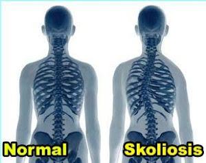 jenis kelainan pada tulang, macam macam kelainan tulang