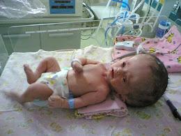 Diagnosis: Hidrosefalus (Apakah yang akan terjadi kepada bayi ini?)