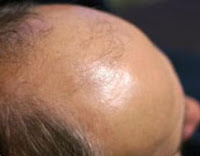 Hair restoration surgery Los Angeles