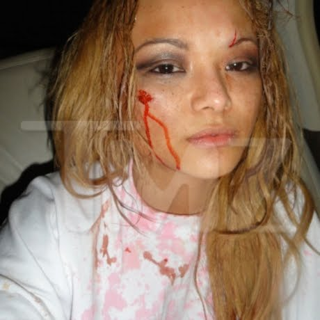 Tila Tequila attacked