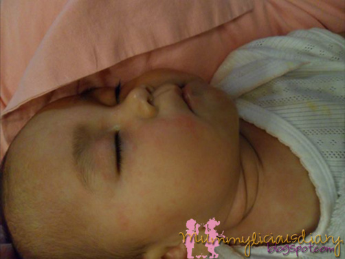 baby heat rash pictures. heat rashes on face. aby heat