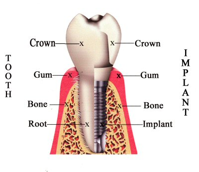 dental implants: the restoration