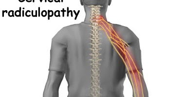 Arc4life S Natural Pain Relief Blog For The Neck And Low
