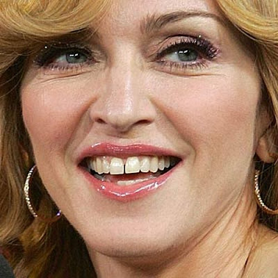 Gaps, caps, and jacked: Celebrities with bad teeth
