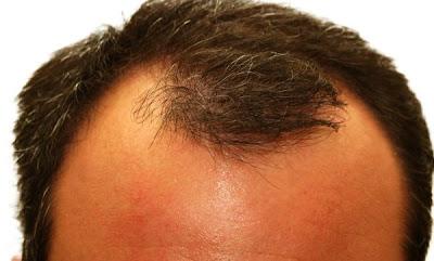 La máscara para el crecimiento de los cabello de la tintura del pimiento y el aceite de ricino