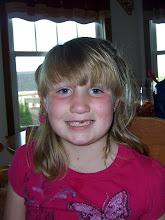 Ashlynn lost one of her front teeth!