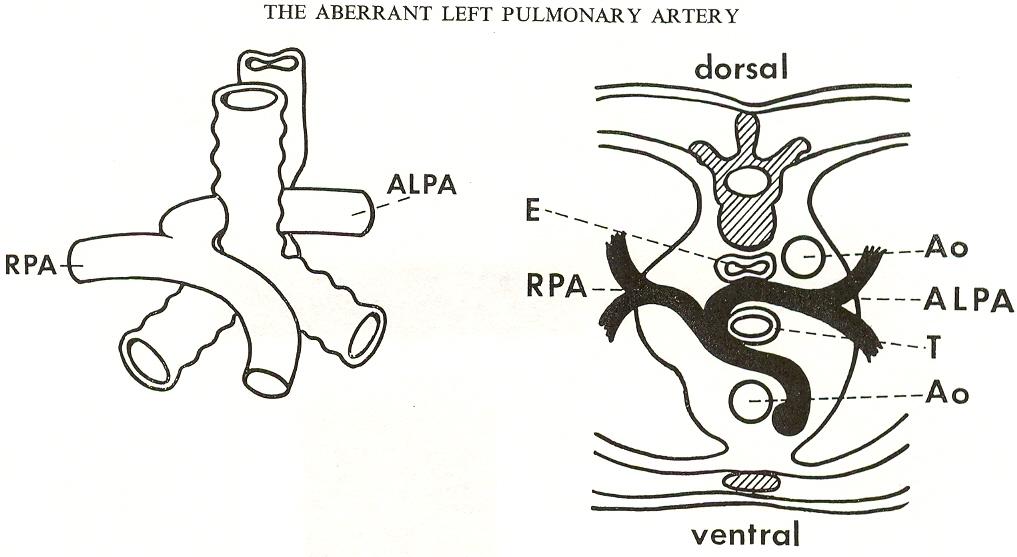 pedi cardiology  anatomy  aberrant rsca  pulmonary sling