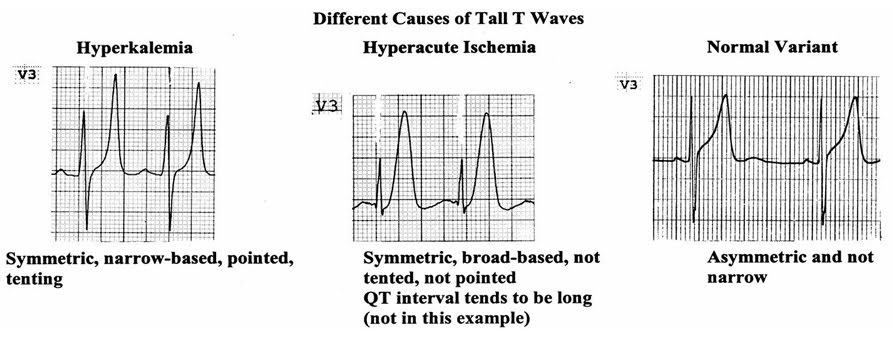 EKG Tall T waves  sc 1 st  Pedi cardiology & Pedi cardiology: EKG: Tall T waves