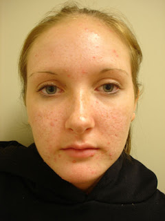 There are many options for acne treatment. If you are like most, ...