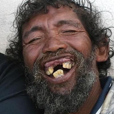 Os homens mais feios do mundo dentes altavistaventures Image collections