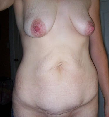 An anyonymous woman's postpartum body, posing nude. Image from The Shape of a Mother.