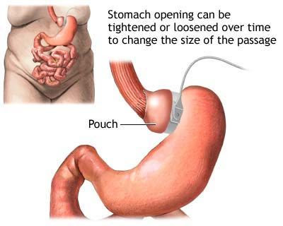How much does gastric bypass surgery cost?