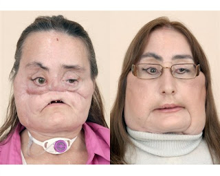 Connie Culp during facial reconstruction and Connie Culp after