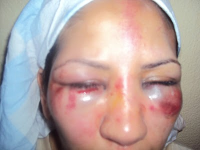 Chicas golpeadas inconscientes y desnudas