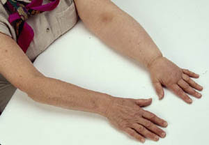 What kind of specialist to see for weeping leg edema and ...
