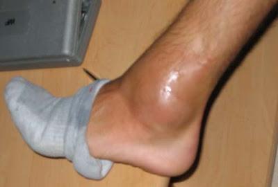 douleur et gonflement cheville