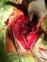 Av Shunt Dialysis