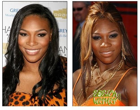 Serena Williams Nose Job Before After