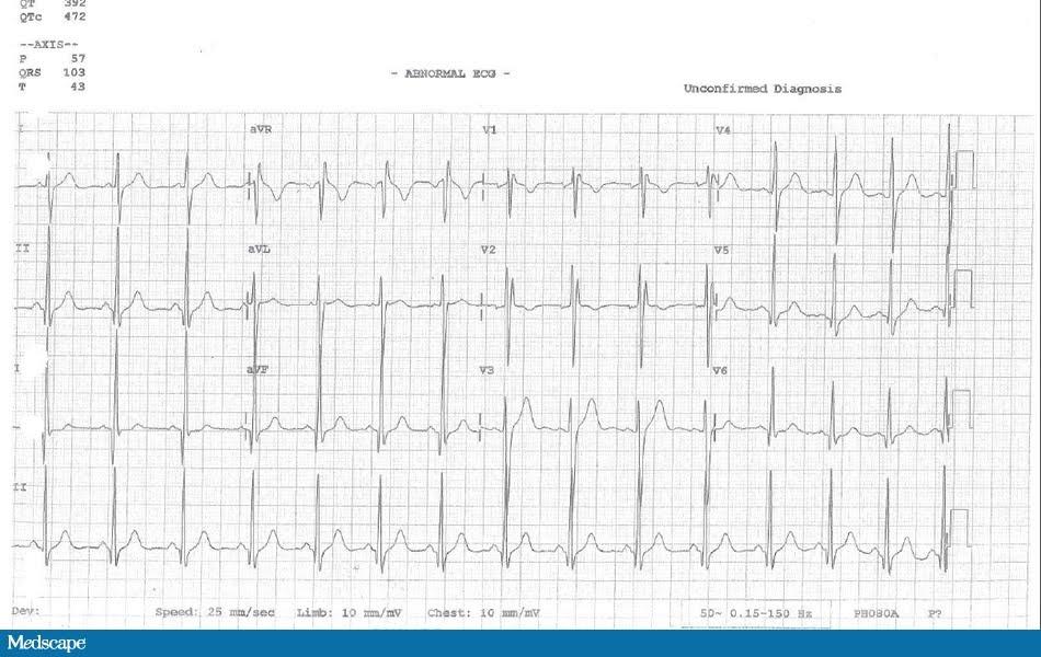 Medscape-EKG.jpg