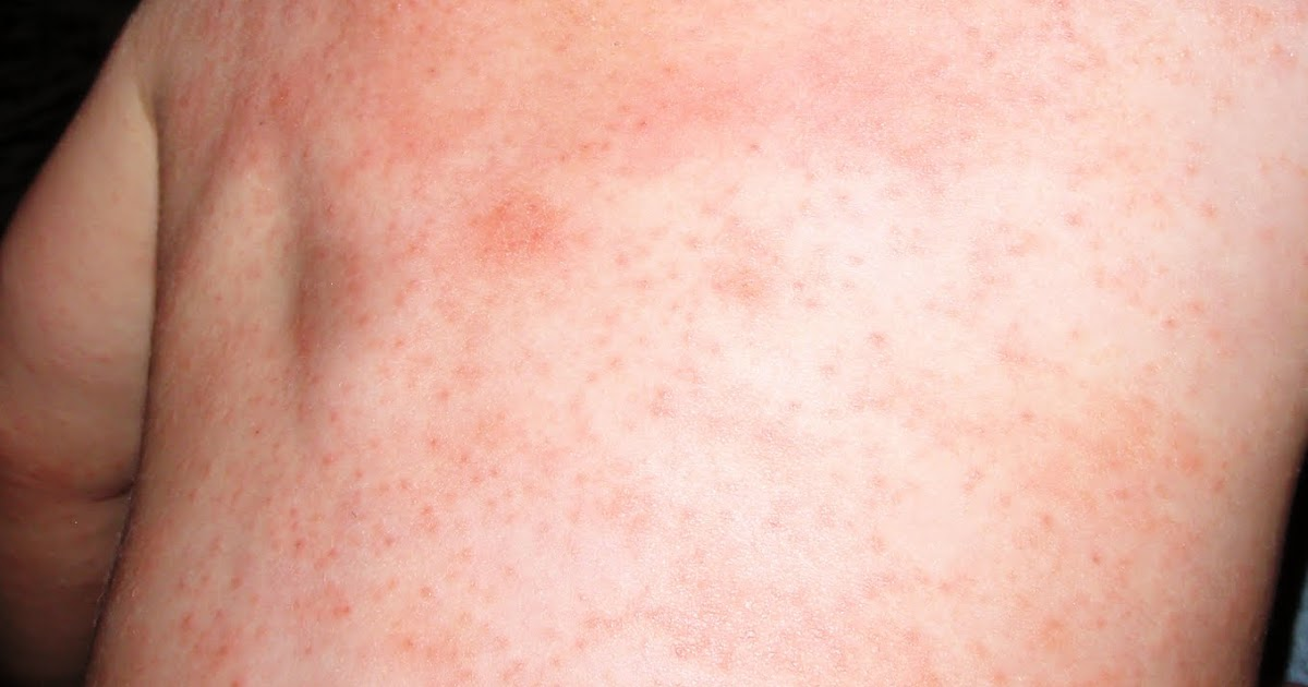 MMR Vaccine Rash - Bing images