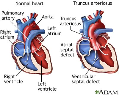 In adult septal defect atrial