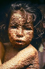 Child with smllpox, Bangladesh