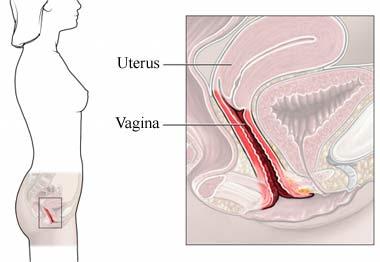 Picor de vulva