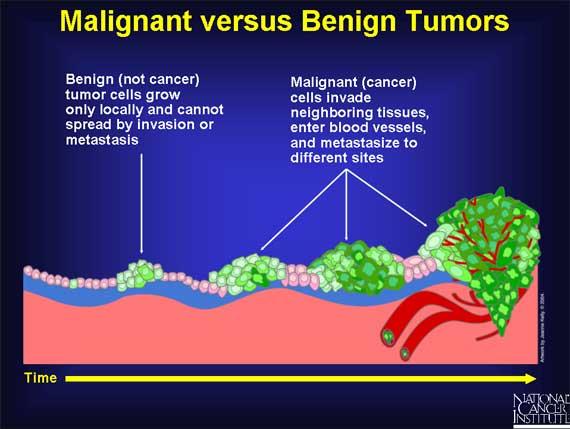 malignant tumor info graphic