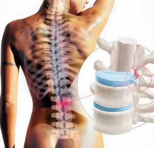 El tratamiento del depósito de las sales en sheynom el departamento de la columna vertebral