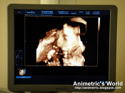 3D / 4D Ultrasound at The Medical City
