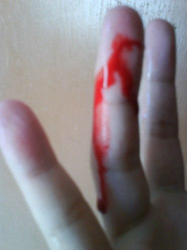 Perdarahan Kecil Sama dengan Masalah Besar! Kenali Penyakit Hemofilia!