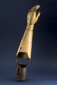 info and history on arm prothesis