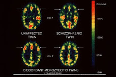 PET scan images from a set of monozygotic twins