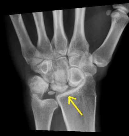Kienbocks Disease - Sumer's Radiology Blog