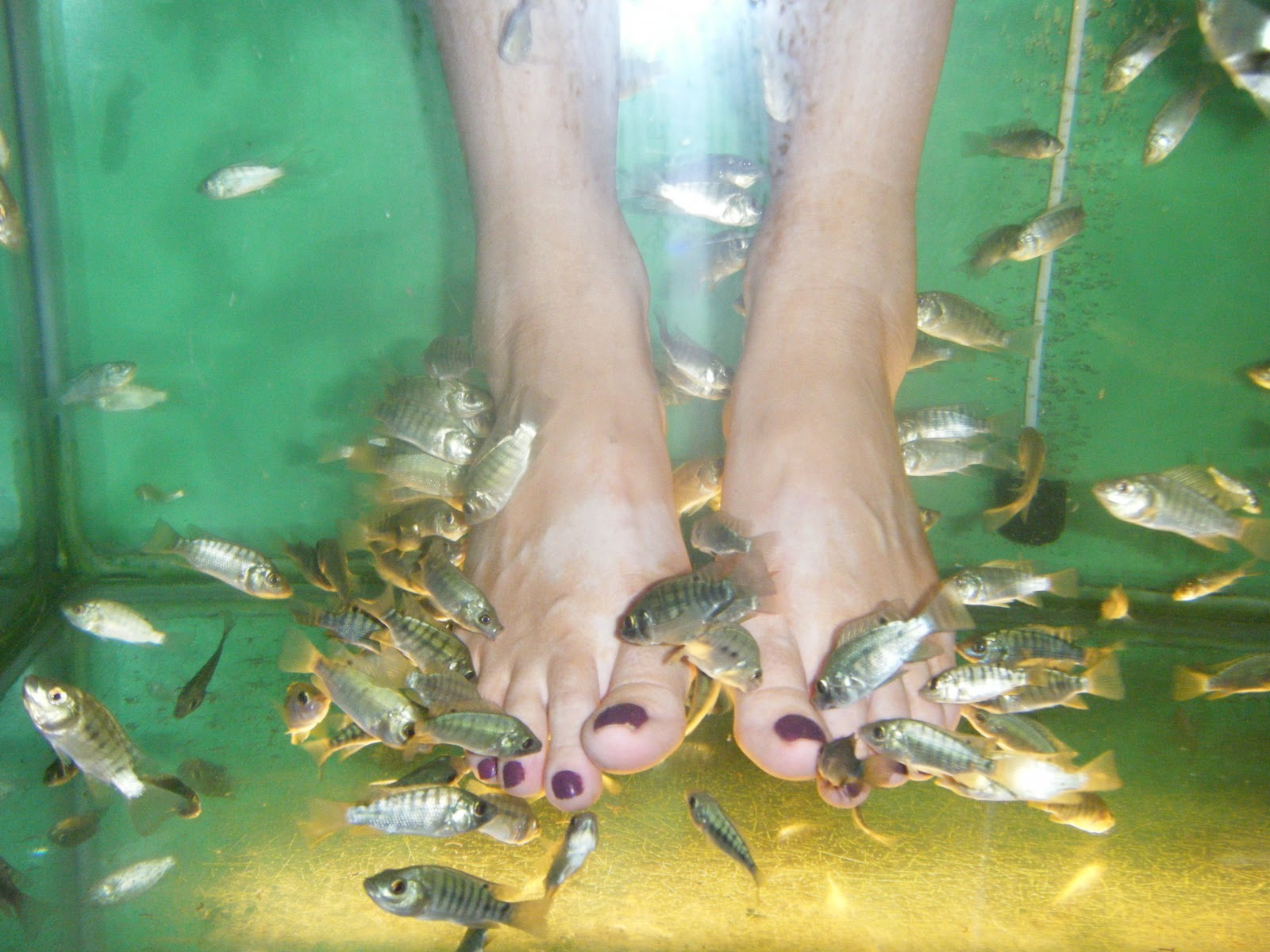 Travel tears and textured implants for Fish eating dead skin pedicure