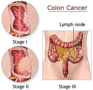 Treatment of stage 0 colon cancer quiz