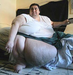 http://2.bp.blogspot.com/_oW_IX1xnjvo/SyuhgT1HQnI/AAAAAAAAADA/3XSShYF6Nrs/s320/obesitas-berat.jpg