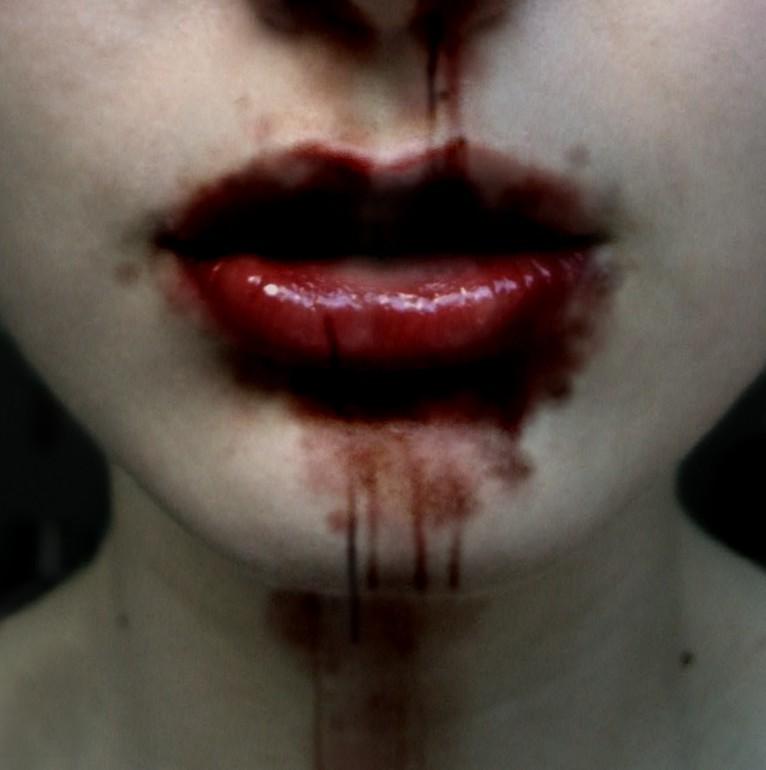 Также в связи с неспособностью крови к свертыванию, может появиться