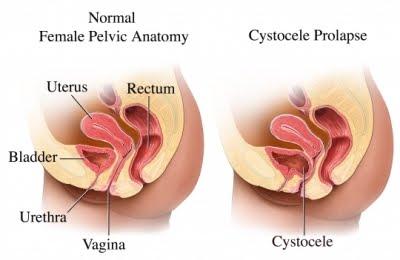 Malla para el prolapso vaginal