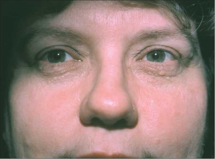Everythinghealth bumps around eyes for Fish eye wart