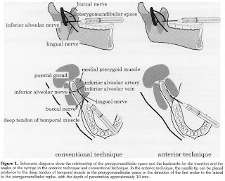 Dentistry Notes: Inferior Alveolar Block
